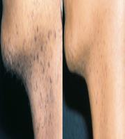 Hair Removal Courtesy of: Régia Celli Ribeiro Patriota MD-Luiz Carlos Cucé MD