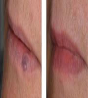 Nd:YAG Laser