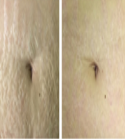 Stretch marks treated with SmartXide Punto