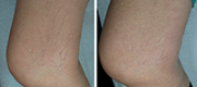 Treated with Motus AY Nd:YAG laser source