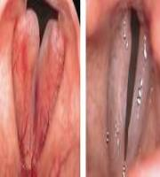 CO₂ Laryngeal Surgery: Cordite Polipoide  By courtesy of F. Algaba MD. ENT Department, Donostia Hospital - Spain