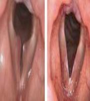 CO₂ Laryngeal Surgery: Vocal Sessile polyp   By courtesy of F. Algaba MD. ENT Department, Donostia Hospital - Spain