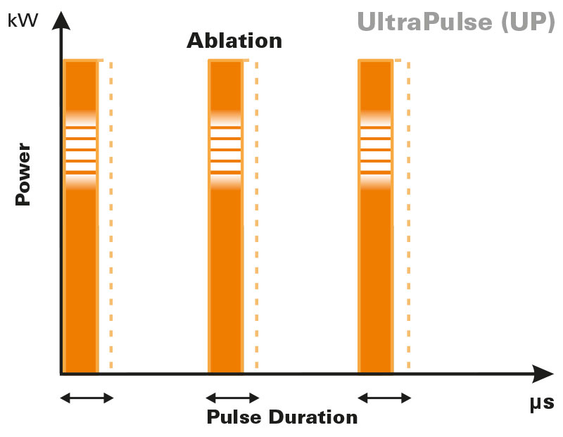 UltraPulse-laser frazionato-pulse-shapes